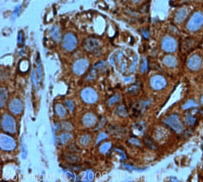 Immunohistochemistry (Formalin/PFA-fixed paraffin-embedded sections) - Cofilin antibody (ab42824)