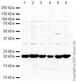 Western blot - Cofilin antibody (ab42824)