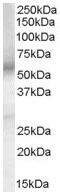 Western blot - Prostaglandin E Receptor EP4 antibody (ab45863)