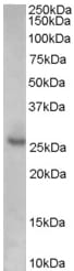 Western blot - p27 KIP 1 antibody (ab45872)