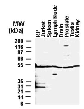 Western blot - BFAR antibody (ab47127)
