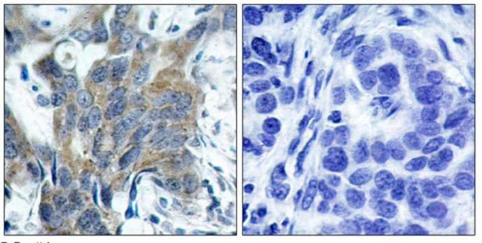 Immunohistochemistry (Paraffin-embedded sections) - beta Catenin (phospho S33) antibody (ab47266)