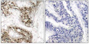 Immunohistochemistry (Paraffin-embedded sections) - Cdc25C (phospho S216) antibody (ab47322)