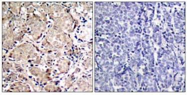 Immunohistochemistry (Paraffin-embedded sections) - FOXO1A (phospho S319) antibody (ab47326)
