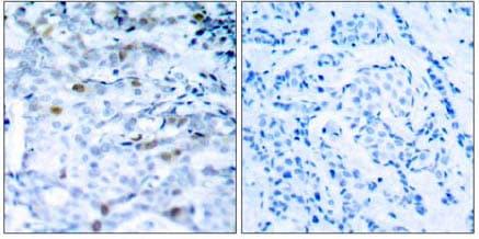 Immunohistochemistry (Paraffin-embedded sections) - Cdc2  (phospho T161) antibody (ab47329)