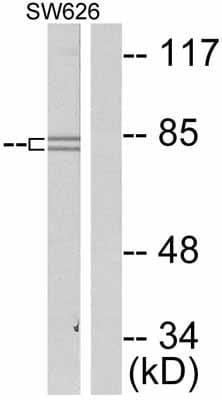 Western blot - beta Catenin (phospho S37) antibody (ab47335)