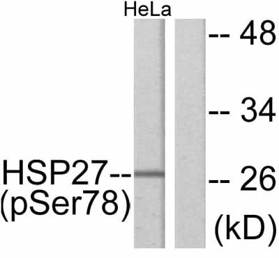 Western blot - Hsp27 (phospho S78) antibody (ab47338)
