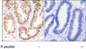 Immunohistochemistry (Paraffin-embedded sections) - p38 (phospho Y182) antibody (ab47363)