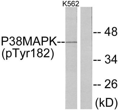 Western blot - p38 (phospho Y182) antibody (ab47363)