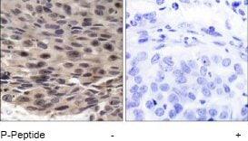 Immunohistochemistry (Paraffin-embedded sections) - eIF4EBP1 (phospho T36) antibody (ab47365)