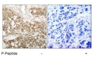 Immunohistochemistry (Paraffin-embedded sections) - PKC theta antibody (ab47384)