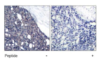 Immunohistochemistry (Paraffin-embedded sections) - IKB alpha antibody (ab47424)