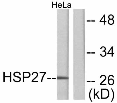 Western blot - Hsp27 antibody (ab47434)