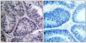 Immunohistochemistry (Paraffin-embedded sections) - IKK alpha antibody (ab47453)