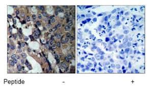 Immunohistochemistry (Paraffin-embedded sections) - Hsp27 antibody (ab47457)