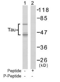 Western blot - Tau antibody (ab47459)