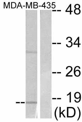 Western blot - eIF4EBP1 antibody (ab47467)