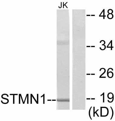 Western blot - Stathmin 1 antibody (ab47468)