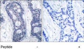 Immunohistochemistry (Paraffin-embedded sections) - eIF4E antibody (ab47482)