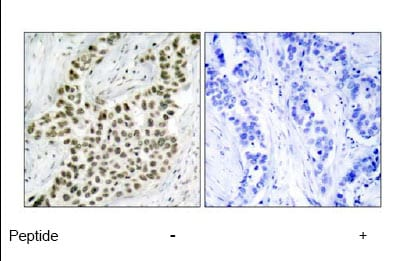 Immunohistochemistry (Paraffin-embedded sections) - Histone H2A.X antibody (ab47503)