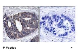 Immunohistochemistry (Paraffin-embedded sections) - DOK1 antibody (ab47505)