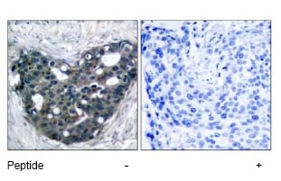 Immunohistochemistry (Paraffin-embedded sections) - DOK2 antibody (ab47507)