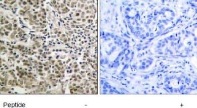 Immunohistochemistry (Paraffin-embedded sections) - Androgen Receptor antibody (ab47570)
