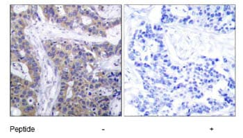 Immunohistochemistry (Paraffin-embedded sections) - CaMKII antibody (ab47585)
