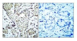 Immunohistochemistry (Paraffin-embedded sections) - MKK6 antibody (ab47593)