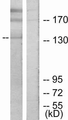 Western blot - ErbB 2 antibody (ab47612)