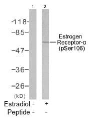 Western blot - Estrogen Receptor alpha (phospho S106) antibody (ab47615)