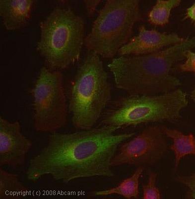 Immunocytochemistry/ Immunofluorescence - Arp2 antibody (ab47654)