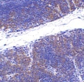 Immunohistochemistry (Formalin/PFA-fixed paraffin-embedded sections) - TNFRSF14 antibody - Aminoterminal end (ab47677)