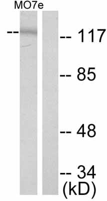 Western blot - c-Kit (phospho Y721) antibody (ab47766)