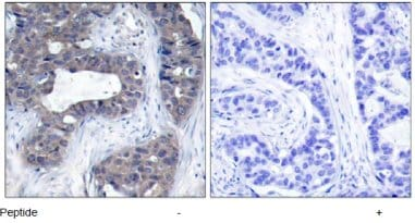 Immunohistochemistry (Paraffin-embedded sections) - IRS1 antibody (ab47778)