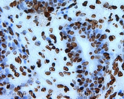 Immunohistochemistry (Formalin/PFA-fixed paraffin-embedded sections) - Histone H3 (acetyl K23) antibody (ab47813)
