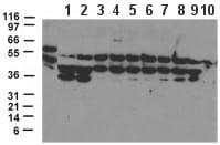 Western blot - CARD15  antibody (ab47918)