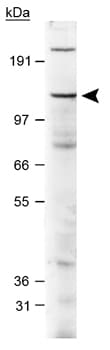 Western blot - Jarid2 antibody (ab48137)