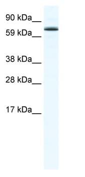 Western blot - Foxo6 antibody (ab48730)
