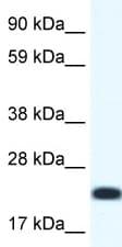 Western blot - CITED4 antibody (ab48838)