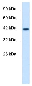 Western blot - ZP3 antibody (ab48895)