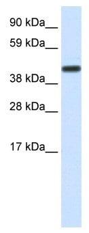 Western blot - CNOT2 antibody (ab49123)