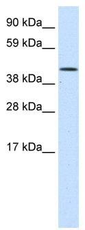 Western blot - SMARCA1 antibody (ab49126)