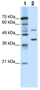 Western blot - REXO4 antibody (ab49180)