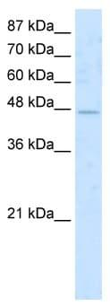 Western blot - COLQ antibody (ab49190)