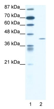 Western blot - FOXL2 antibody (ab49293)
