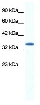 Western blot - ARA9 antibody (ab49305)