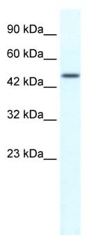 Western blot - RNF23 antibody (ab49312)
