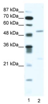 Western blot - BRD9 antibody (ab49313)