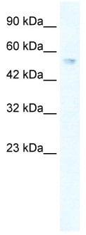 Western blot - ZNF613 antibody (ab49337)